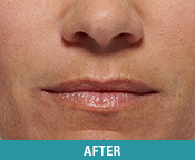 Dermal Filler San Francisco