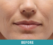 Botox Facial Filler San Francisco