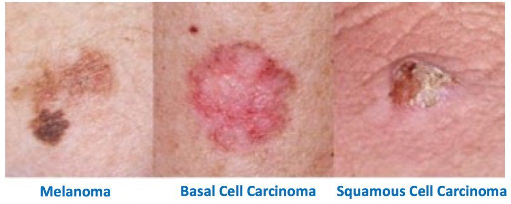 Photos. Most common skin cancers