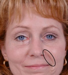 "Photo. The nasolabial folds commonly known as ""smile lines"" or ""laugh lines"", are the two skin folds that run from each side of the nose to the corners of the mouth."