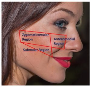 Figure 1. Month-6 response rates were 76% for zygomaticomalar, 83% for anteromedial cheek, and 77% for submalar regions.